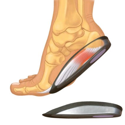 SmartSole-Exercise-Insoles-View4