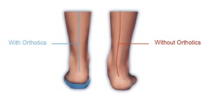 Orthotics-at-housecalls